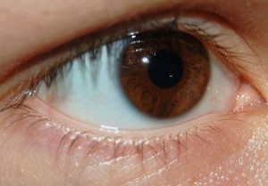 kuivat-silmat-ruskea-silma